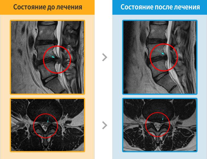 MRI_407305