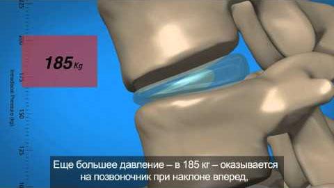 Межпозвоночная грыжа, здоровье позвоночника