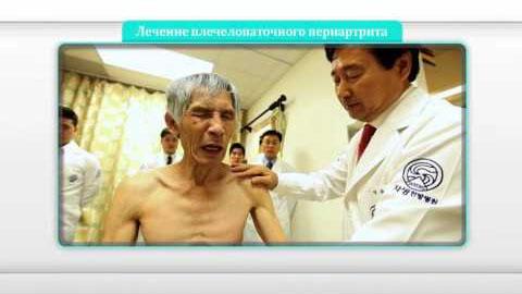 Безоперационное лечение плечелопаточного периартрита