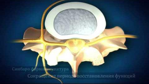 Мгновенно восстанавливалющая фармакопунктура меридиана мышц